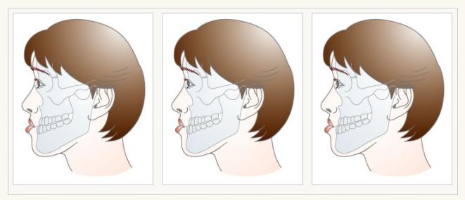 顎変形症の説明画像